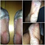 post death race feet damage